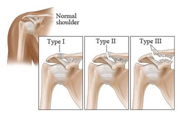 acromioclavicular (ac) joint injuries | phoenix shoulder and knee, Human Body