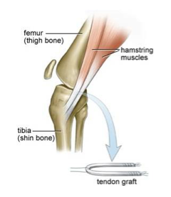 acl tendon graft