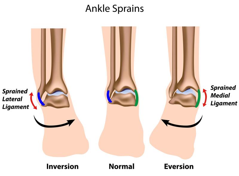 orthopedic bracing, orthopedic bracing specialist phoenix ... unlabeled leg diagram