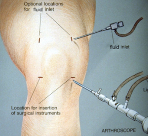 Knee Surgeon Phoenix AZ