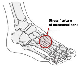 management of stress fractures in athletes