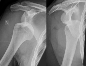 Dislocated_shoulder_X-ray_03
