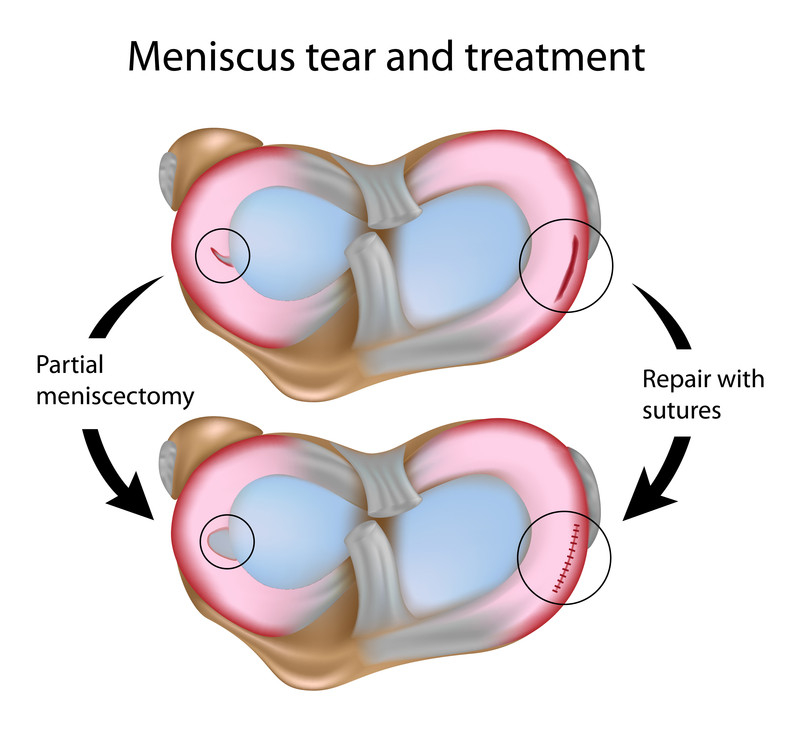 Image result for meniscal surgery