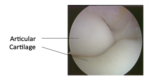Elbow Cartilage