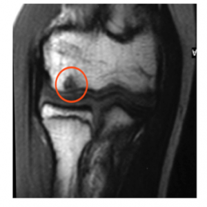 Elbow OCD MRI