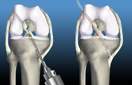 Allograft Bone-Patellar Tendon-Bone ACL Reconstruction