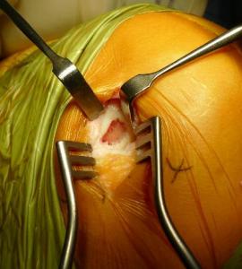 articular cartilage damage
