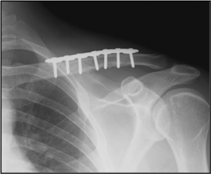 Clavicle Fixation