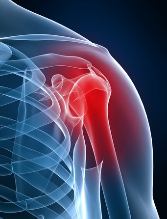 Chronic Shoulder Pain Treatments In Arizona
