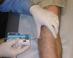 Sports_Medicine_Compartment_Test_Anterior-258x204